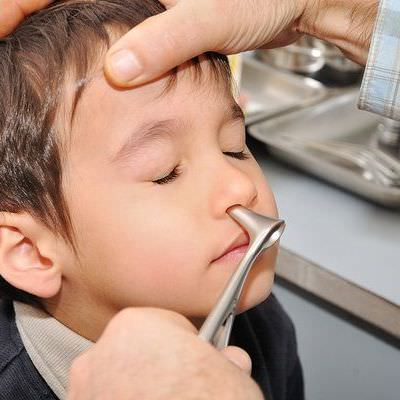 polipi la copii. simptome si tratament