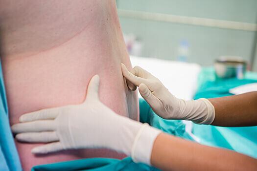efecte pozitive si negative pentru anestezia epidurala