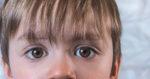 Conjunctivita la copii: simptome, tratament si cum o putem evita!
