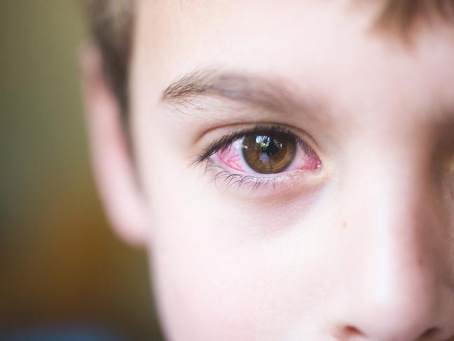 Cele mai intalnite simptome de conjuctivita la copii!